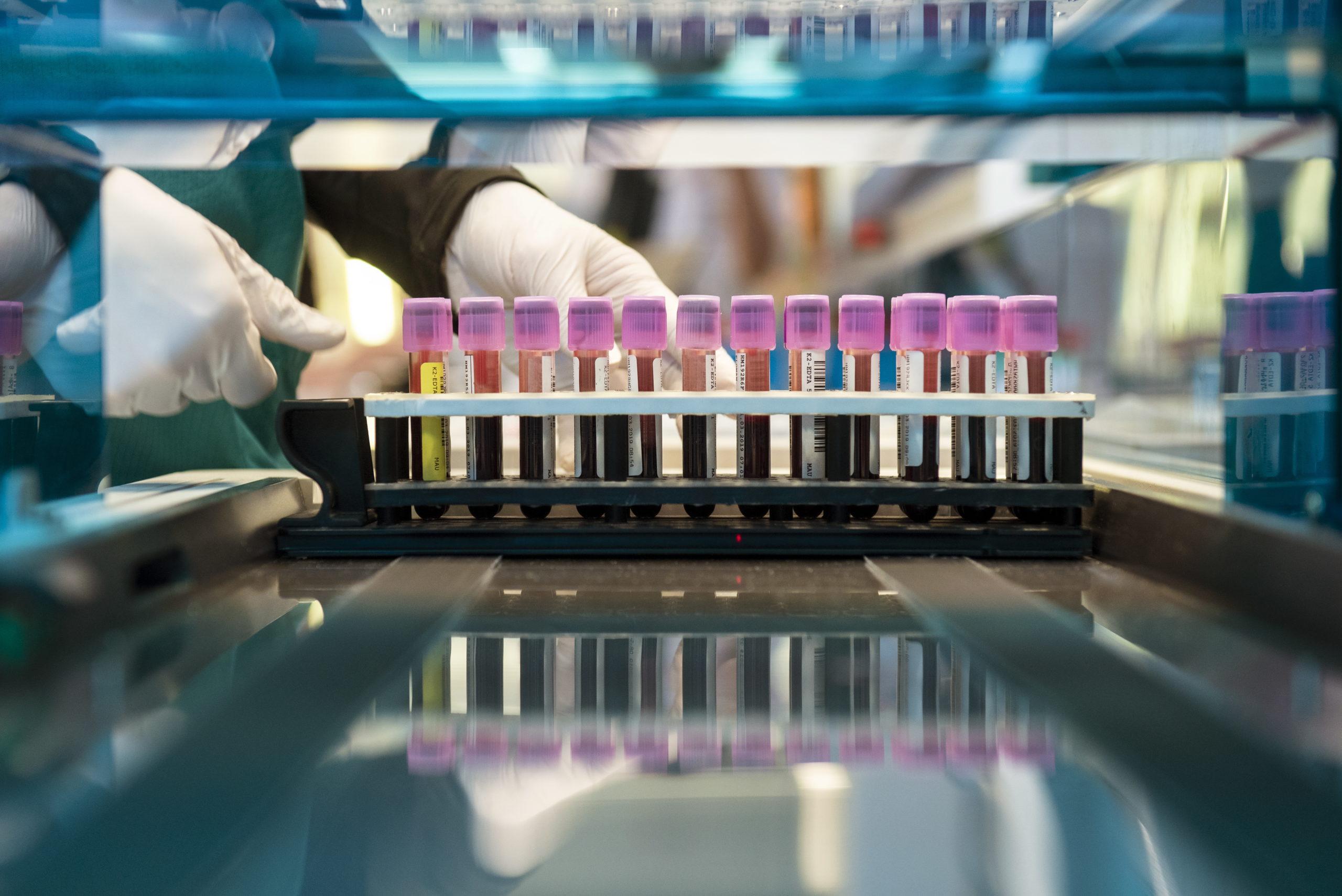HUS on aktiivinen ja vaikuttava tutkimusyhteisö
